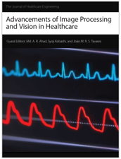 Joo manuel r s tavares publicaes hindawi publishing corporation on advancements of image processing and vision in healthcare which includes 9 articles volumes 20172018 20172018 fandeluxe Image collections